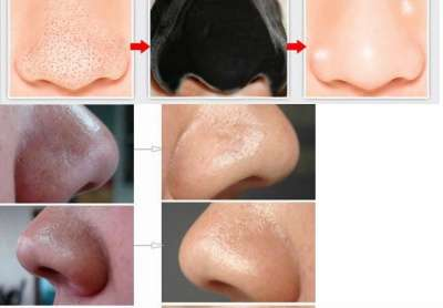 маска-пленка для носа