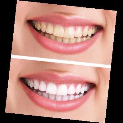 Мягкое отбеливание без вреда для зубов